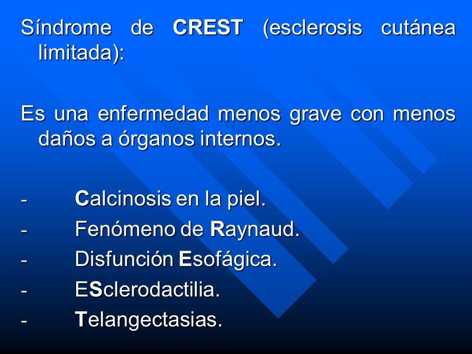 Síndrome de CREST (esclerosis cutánea limitada):