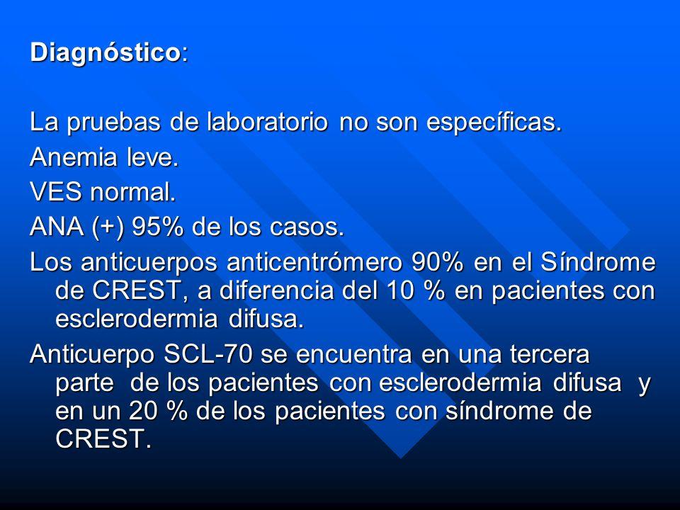 Diagnóstico: La pruebas de laboratorio no son específicas. Anemia leve. VES normal. ANA (+) 95% de los casos.
