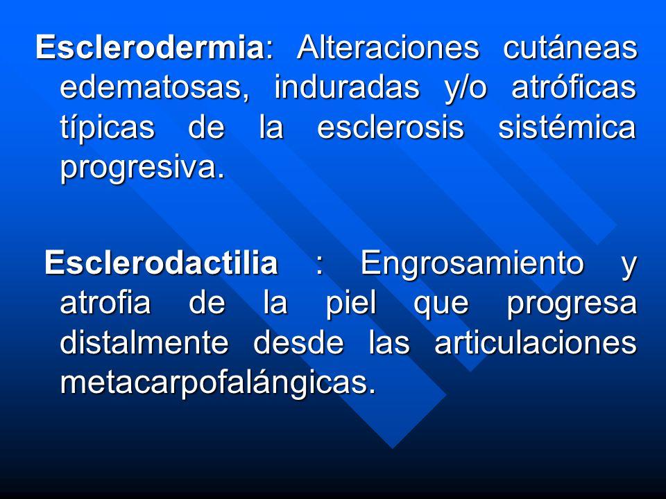 Esclerodermia: Alteraciones cutáneas edematosas, induradas y/o atróficas típicas de la esclerosis sistémica progresiva.