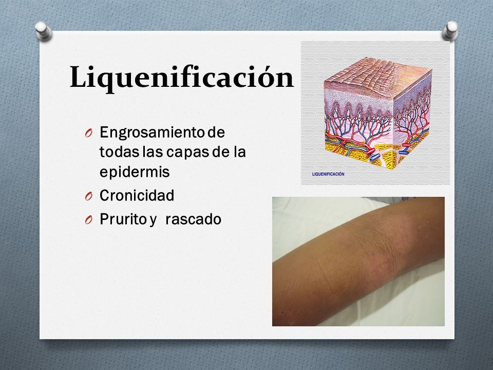 Liquenificación Engrosamiento de todas las capas de la epidermis