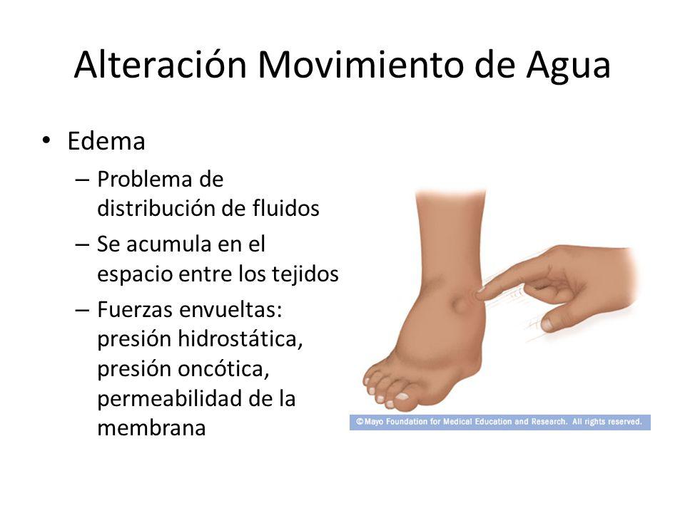 Alteración Movimiento de Agua