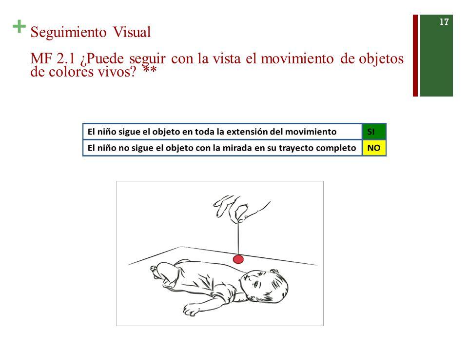 Seguimiento Visual MF 2.1 ¿Puede seguir con la vista el movimiento de objetos de colores vivos **