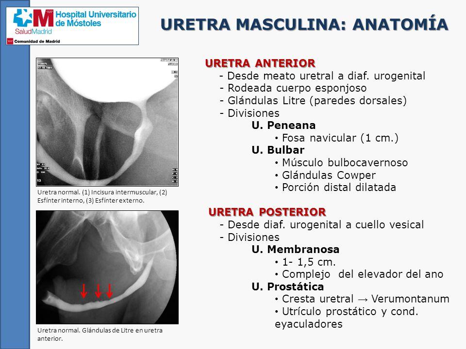 Encantador Anatomía De La Glándula De La Próstata Masculina ...