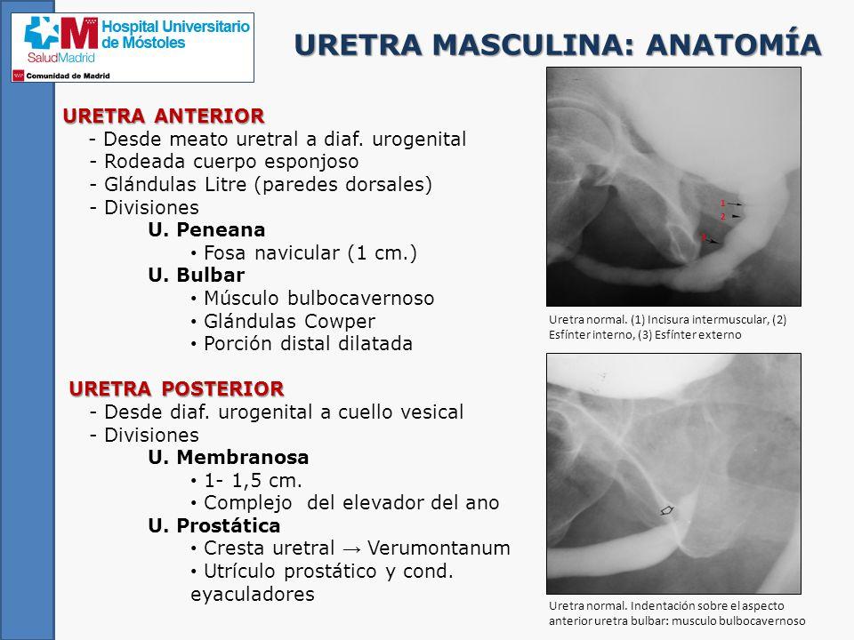 Contemporáneo Uretra Masculina Anatomía De Radiología Friso ...