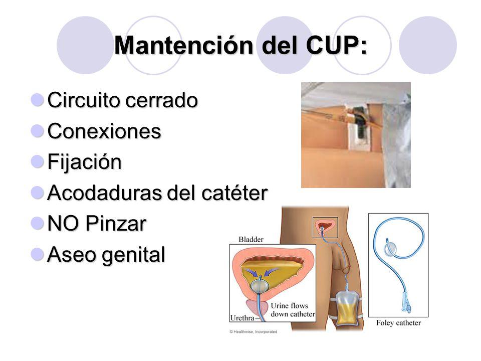 Mantención del CUP: Circuito cerrado Conexiones Fijación