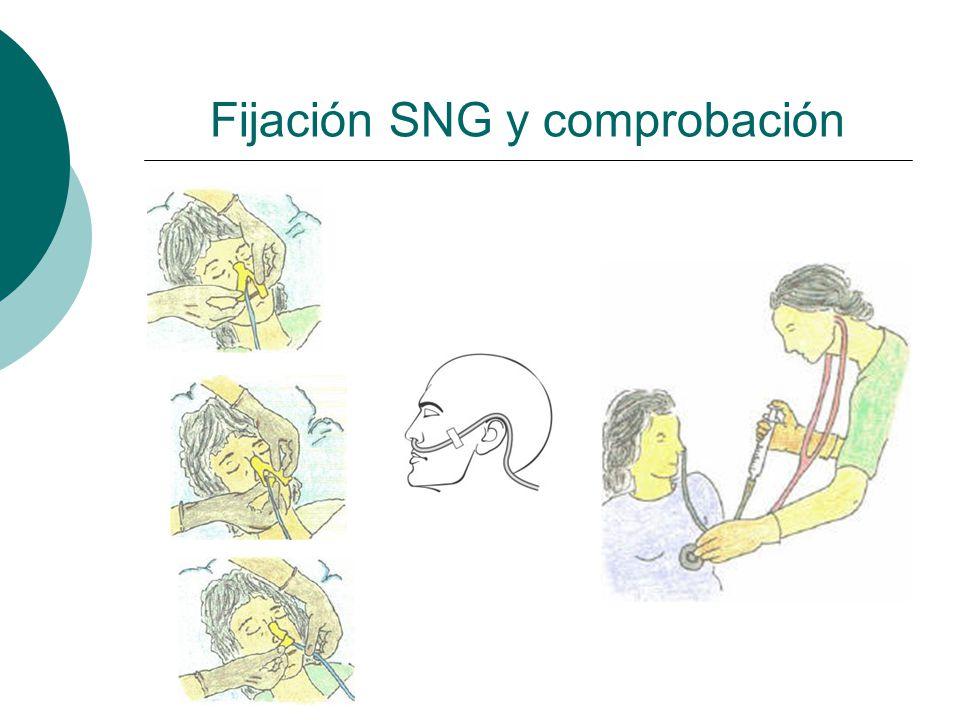 Fijación SNG y comprobación