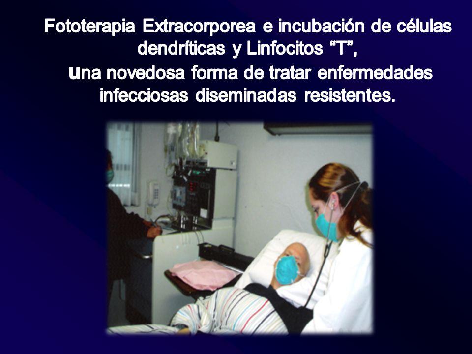 Fototerapia Extracorporea e incubación de células dendríticas y Linfocitos T ,