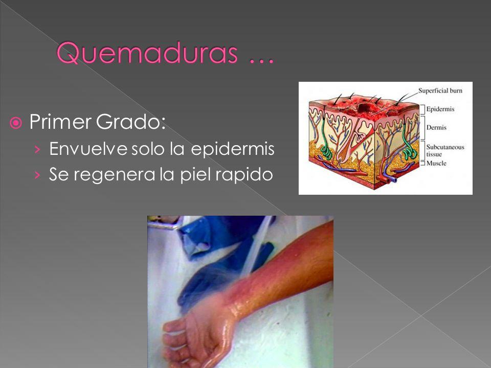 Quemaduras … Primer Grado: Envuelve solo la epidermis
