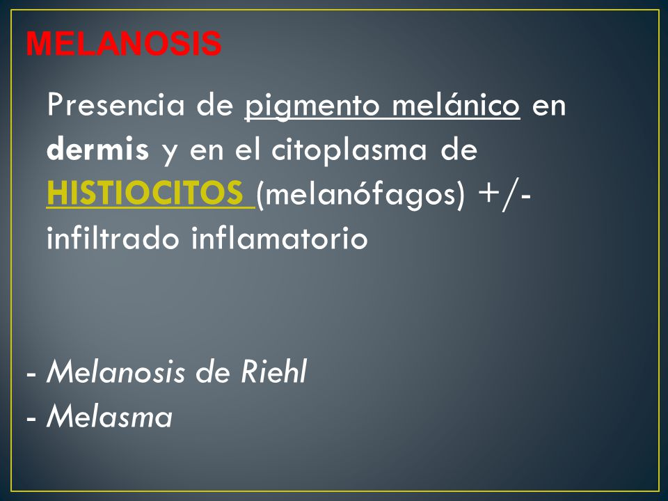 Melanosis de Riehl Melasma MELANOSIS