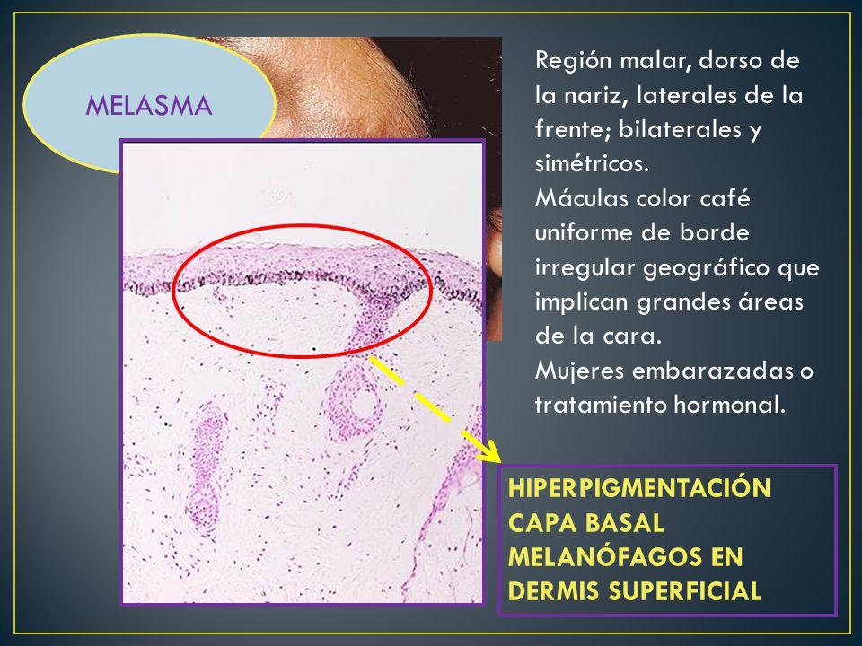 NEVUS DE HORI MELASMA. Región malar, dorso de la nariz, laterales de la frente; bilaterales y simétricos.