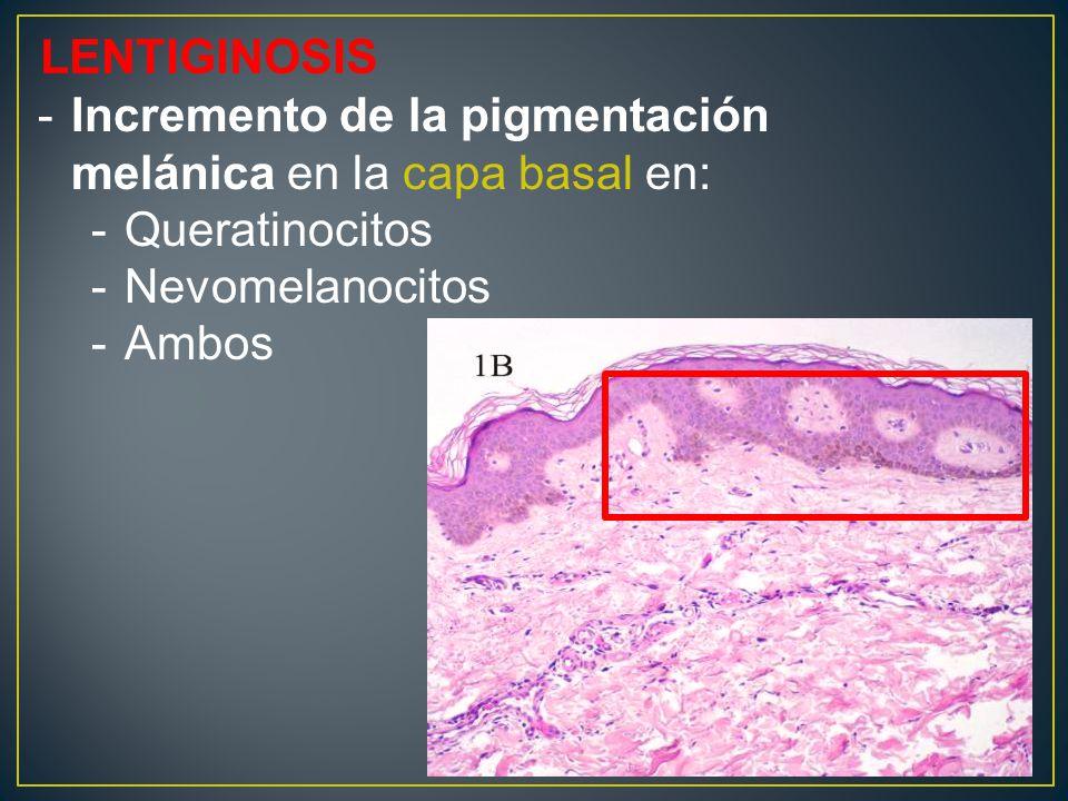 LENTIGINOSIS Incremento de la pigmentación melánica en la capa basal en: Queratinocitos. Nevomelanocitos.