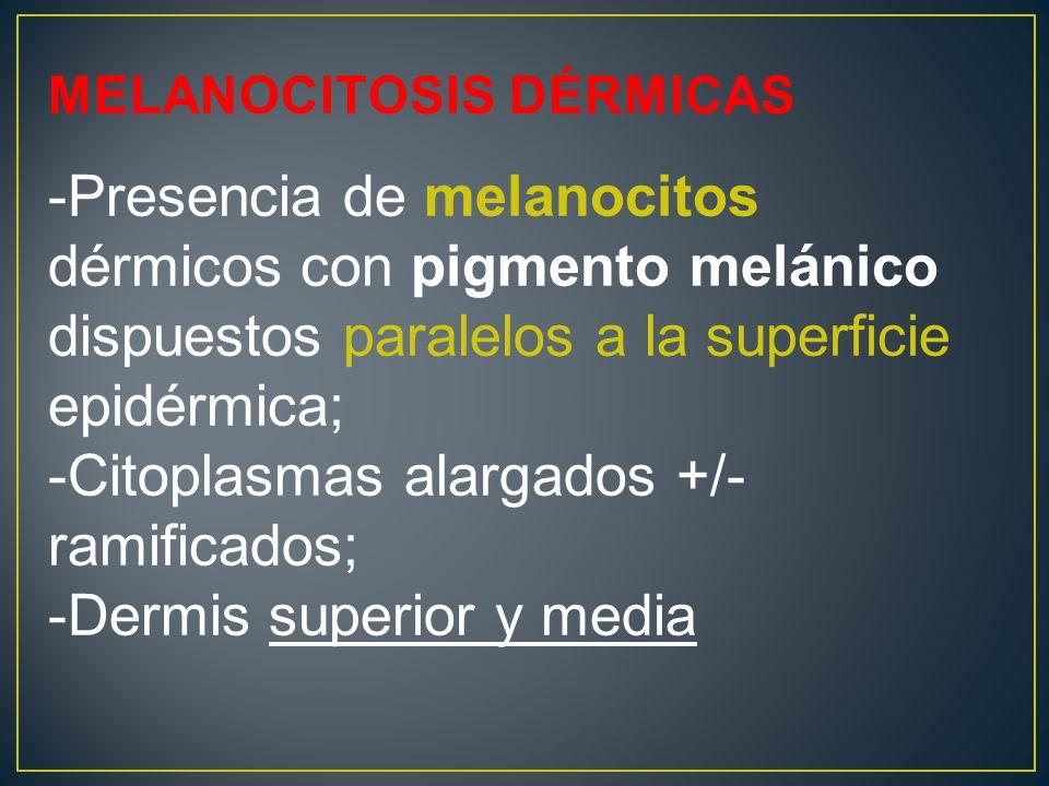 MELANOCITOSIS DÉRMICAS