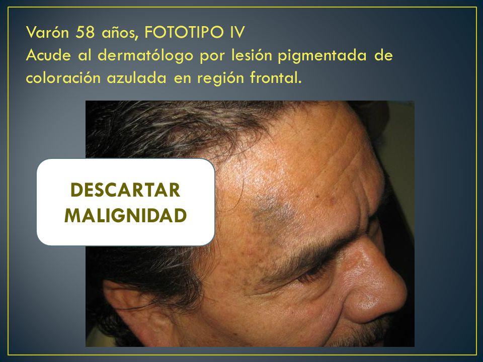 DESCARTAR MALIGNIDAD Varón 58 años, FOTOTIPO IV
