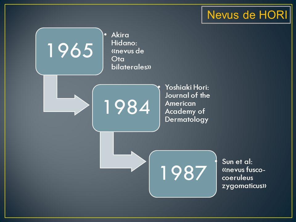 1965 1984 1987 Nevus de HORI Akira Hidano: «nevus de Ota bilaterales»