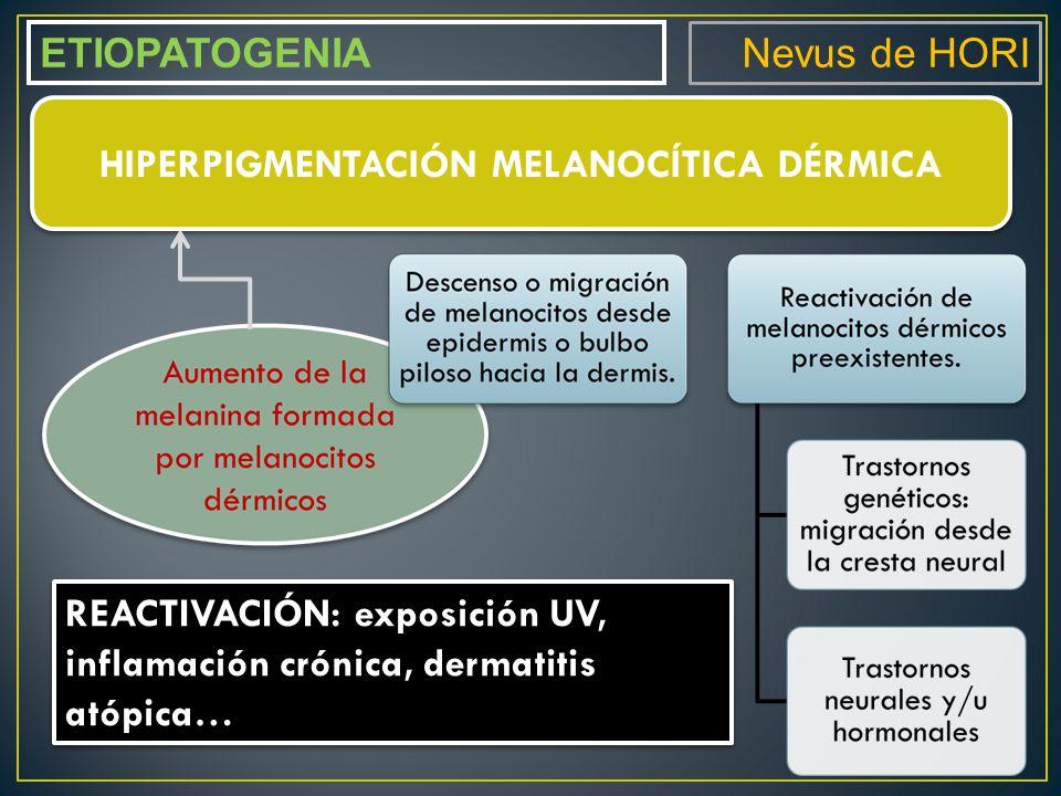 HIPERPIGMENTACIÓN MELANOCÍTICA DÉRMICA