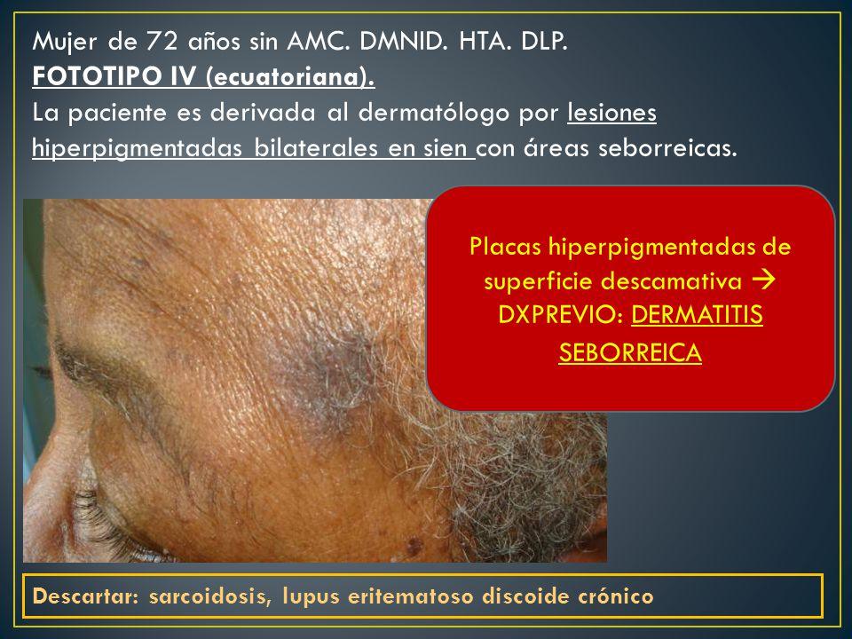 Mujer de 72 años sin AMC. DMNID. HTA. DLP. FOTOTIPO IV (ecuatoriana).