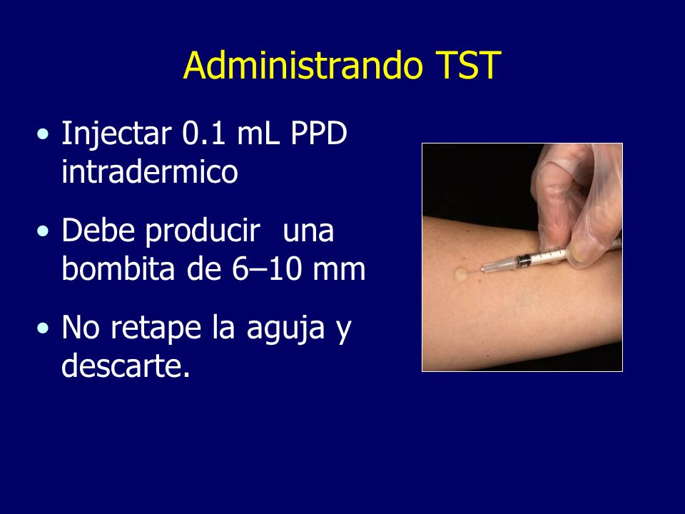 Administrando TST Injectar 0.1 mL PPD intradermico