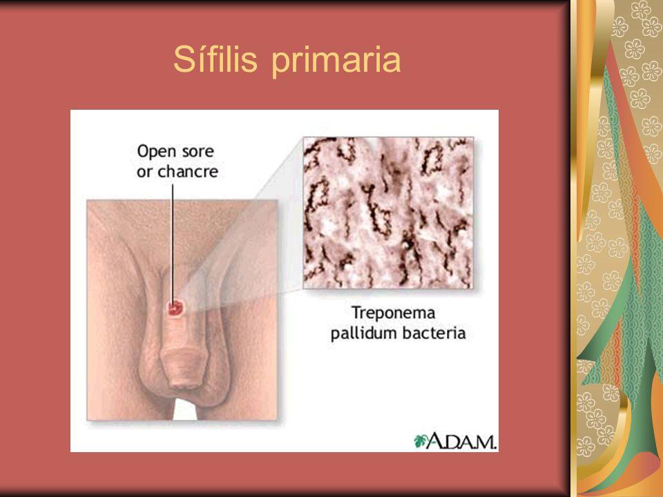 Sífilis primaria