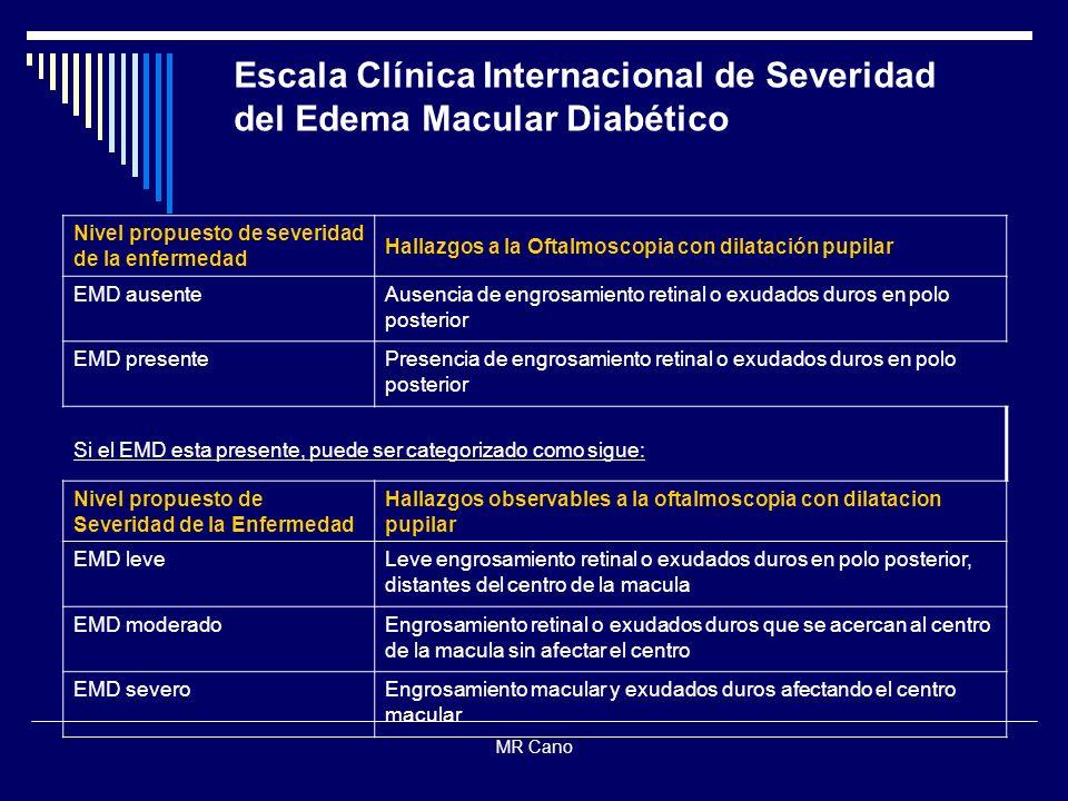 Escala Clínica Internacional de Severidad del Edema Macular Diabético