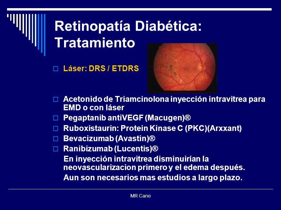 Retinopatía Diabética: Tratamiento