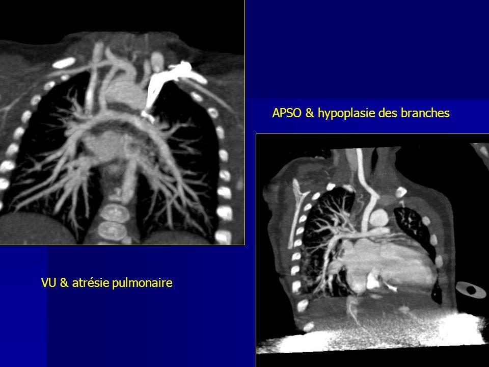 APSO & hypoplasie des branches