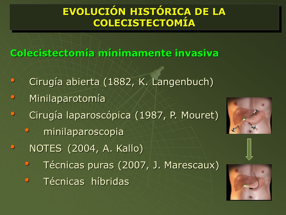 miniLAPAROSCOPIA La evolución de la cirugía laparoscópica