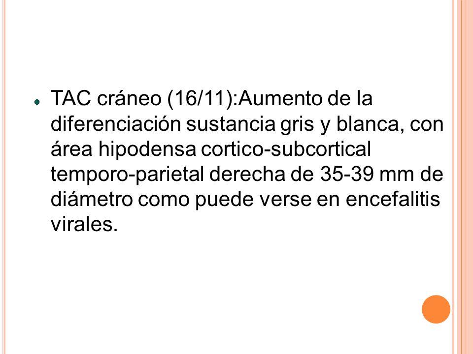 TAC cráneo (16/11):Aumento de la diferenciación sustancia gris y blanca, con área hipodensa cortico-subcortical temporo-parietal derecha de 35-39 mm de diámetro como puede verse en encefalitis virales.