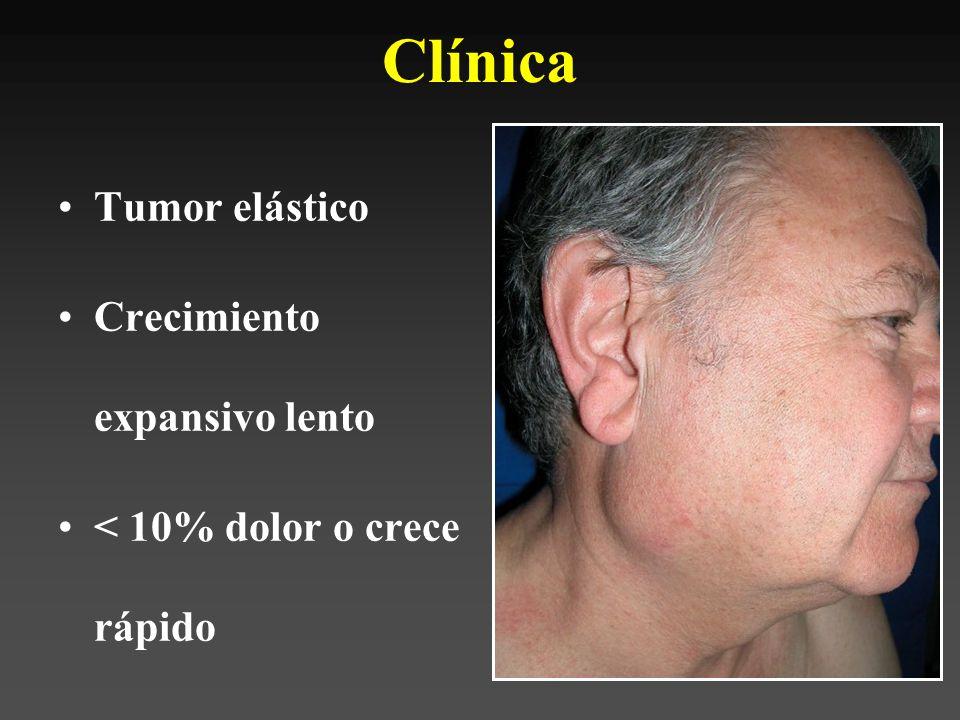 Clínica Tumor elástico Crecimiento expansivo lento
