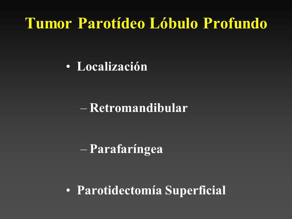 Tumor Parotídeo Lóbulo Profundo