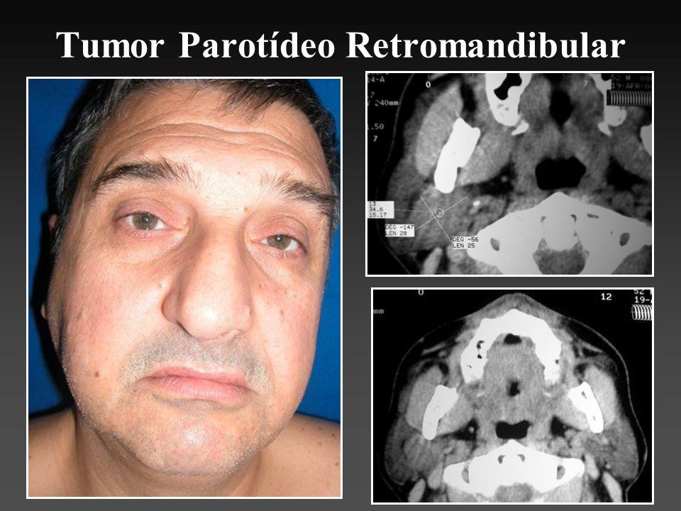 Tumor Parotídeo Retromandibular