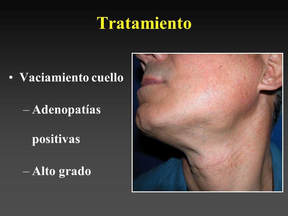 Tratamiento Vaciamiento cuello Adenopatías positivas Alto grado