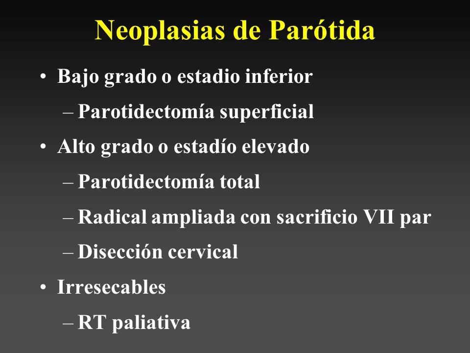 Neoplasias de Parótida