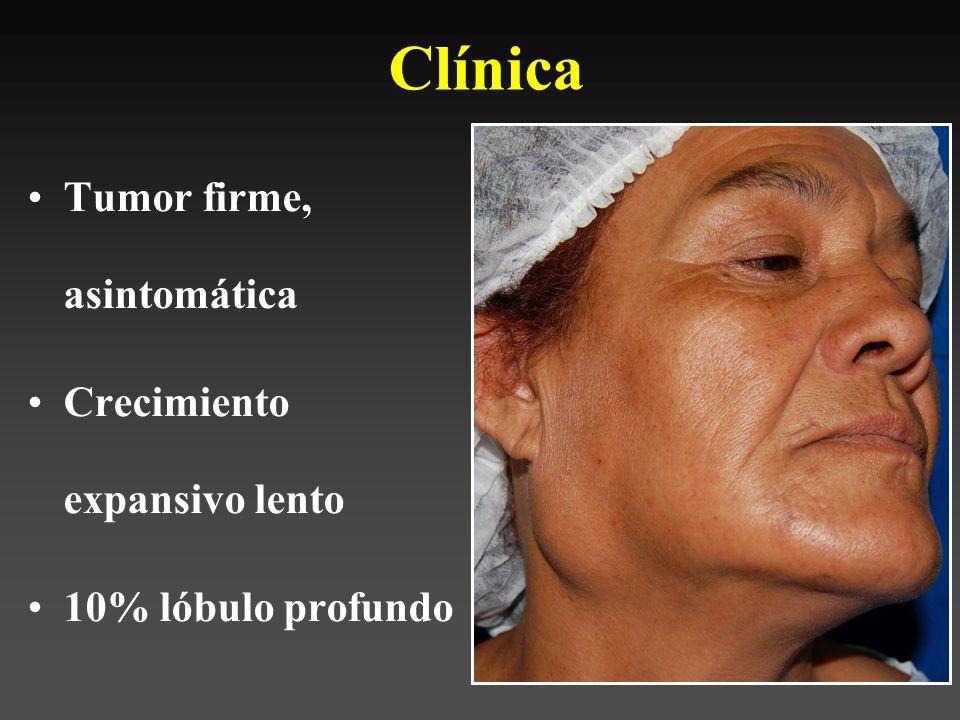 Clínica Tumor firme, asintomática Crecimiento expansivo lento