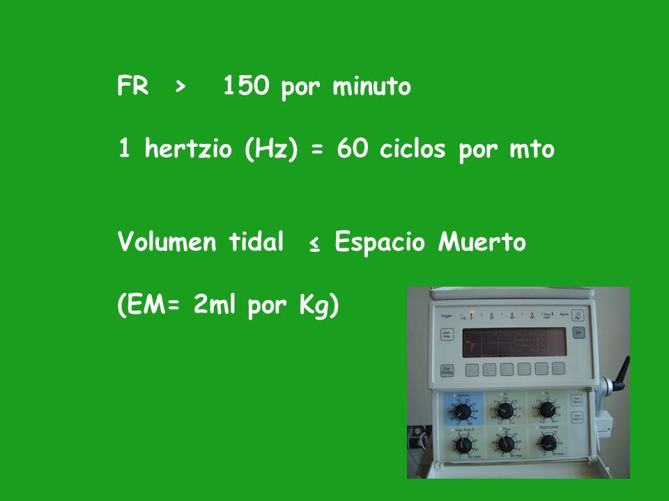 FR > 150 por minuto1 hertzio (Hz) = 60 ciclos por mto.