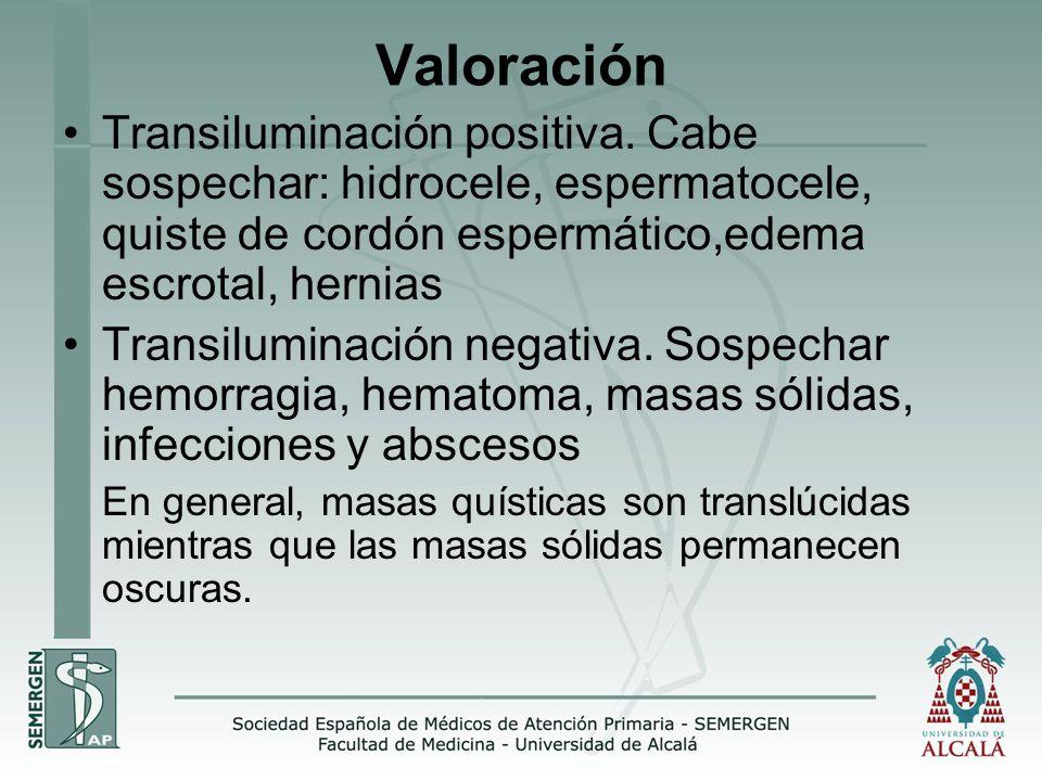 Valoración Transiluminación positiva. Cabe sospechar: hidrocele, espermatocele, quiste de cordón espermático,edema escrotal, hernias.