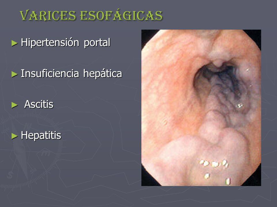 Varices esofágicas Hipertensión portal Insuficiencia hepática Ascitis