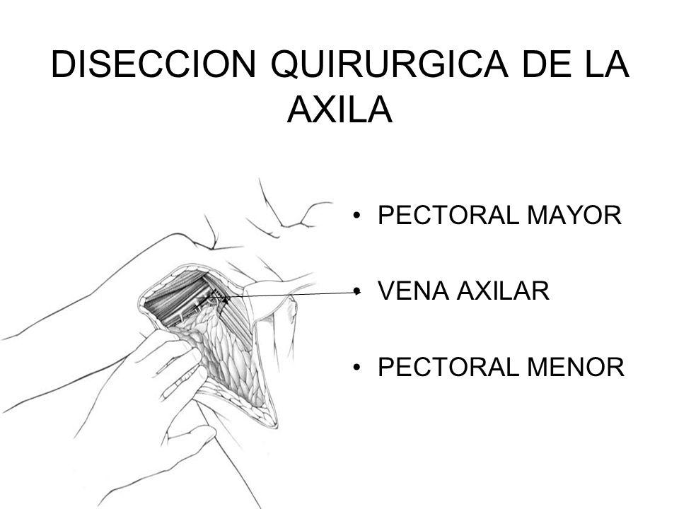 Lujo Axila Disección De La Anatomía Ilustración - Anatomía de Las ...