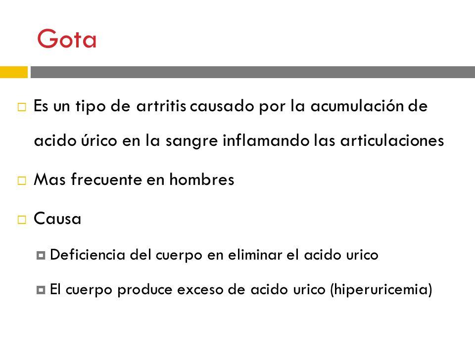 que alimentos no se deben consumir con acido urico alto existe algun medicamento para la gota jarabe natural para la gota