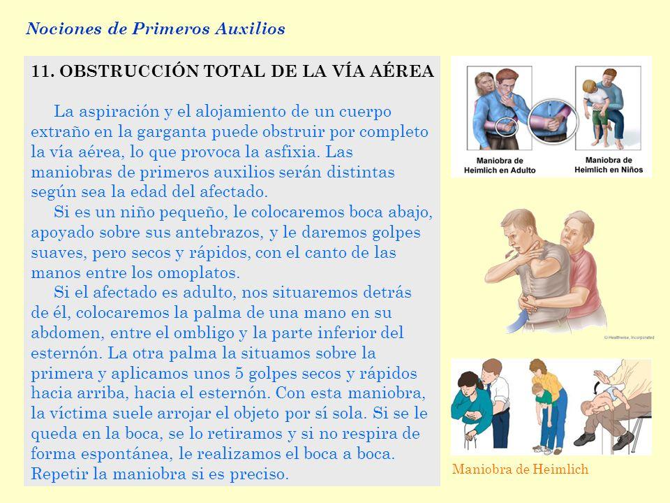 Asfixia en adultos - Clnica DAM Madrid
