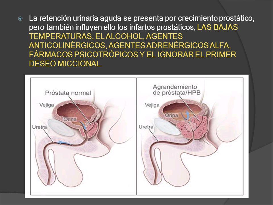 La retención urinaria aguda se presenta por crecimiento prostático, pero también influyen ello los infartos prostáticos, LAS BAJAS TEMPERATURAS, EL ALCOHOL, AGENTES ANTICOLINÉRGICOS, AGENTES ADRENÉRGICOS ALFA, FÁRMACOS PSICOTRÓPICOS Y EL IGNORAR EL PRIMER DESEO MICCIONAL.