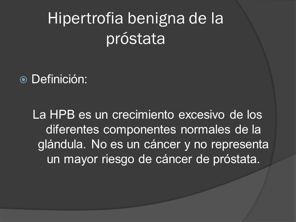 Hipertrofia benigna de la próstata