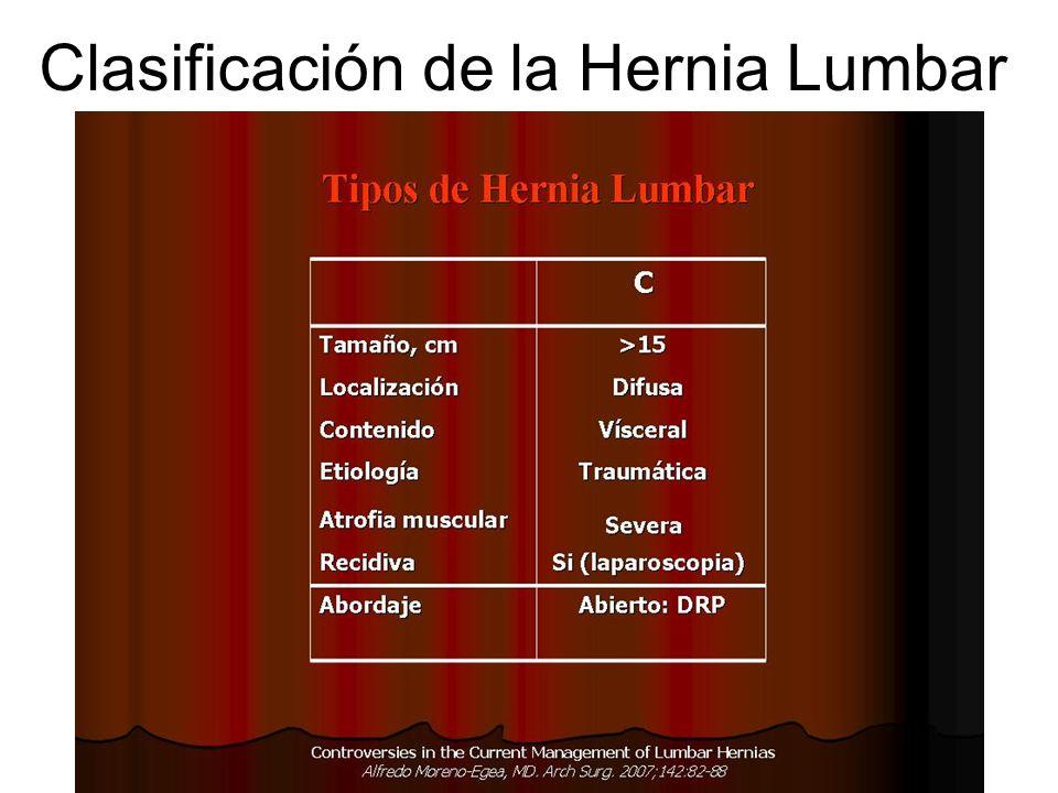 Clasificación de la Hernia Lumbar