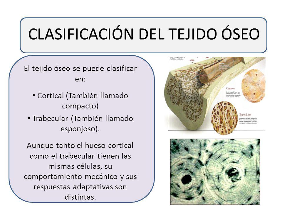 CLASIFICACIÓN DEL TEJIDO ÓSEO