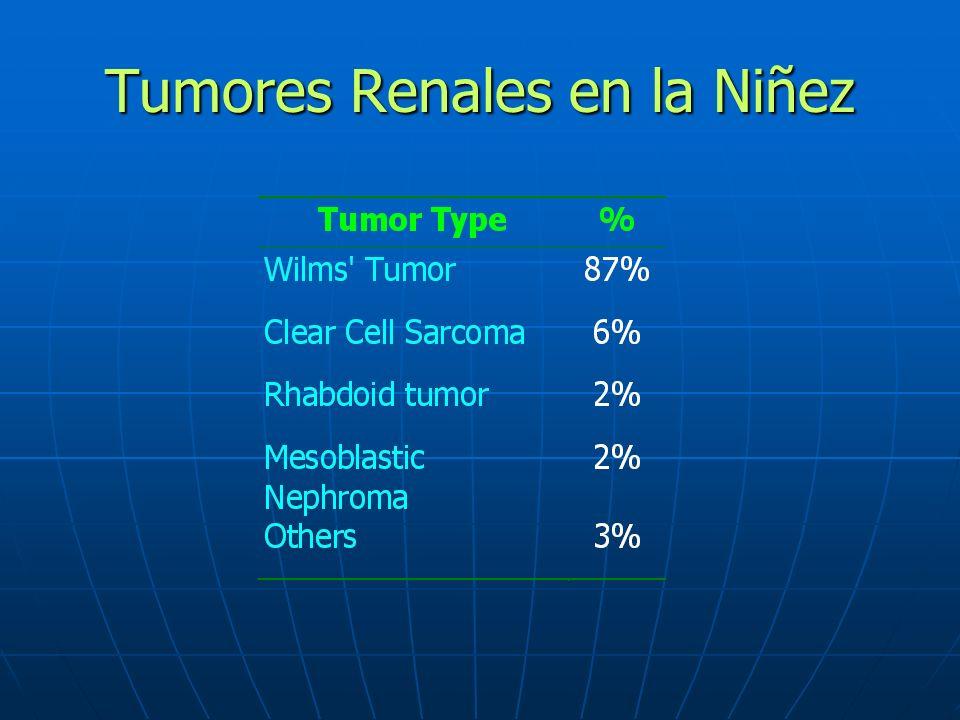 Tumores Renales en la Niñez