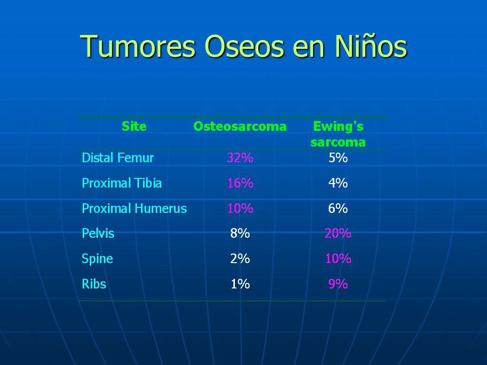 Tumores Oseos en Niños