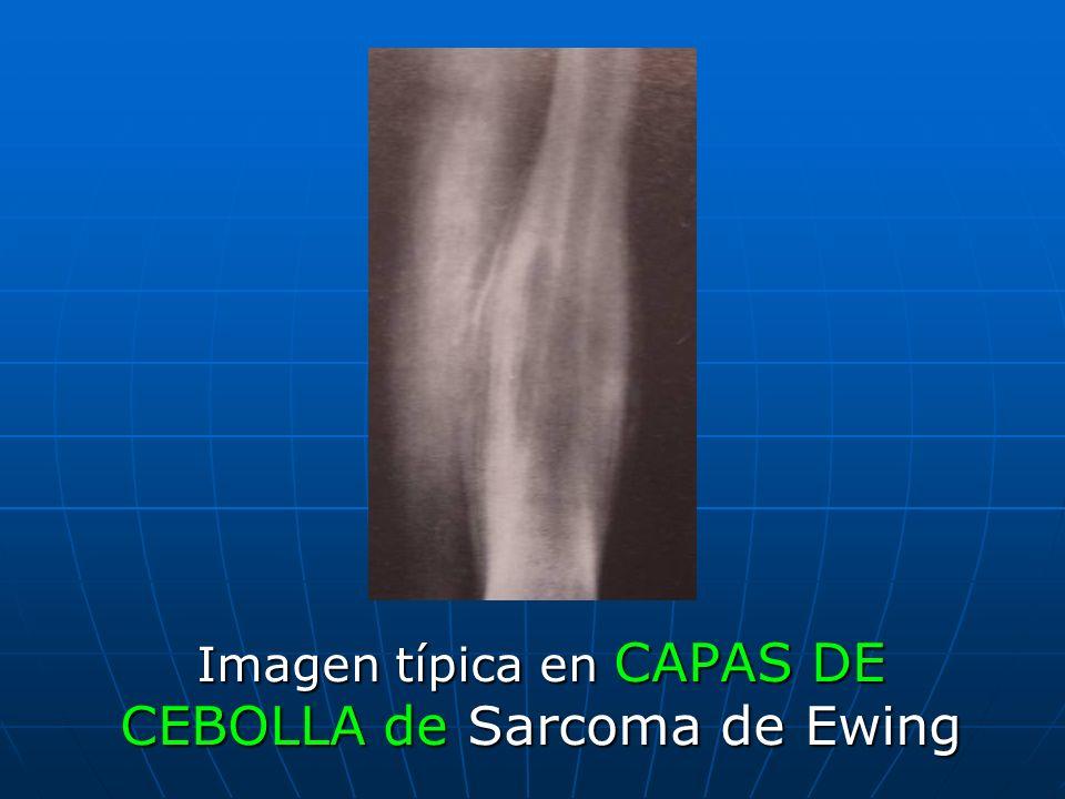 Imagen típica en CAPAS DE CEBOLLA de Sarcoma de Ewing