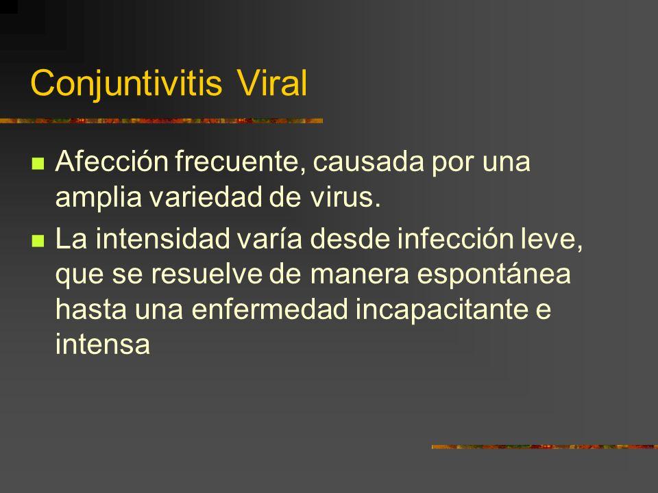 Conjuntivitis Viral Afección frecuente, causada por una amplia variedad de virus.