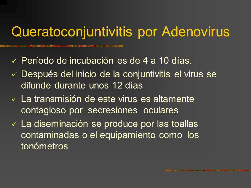 Queratoconjuntivitis por Adenovirus