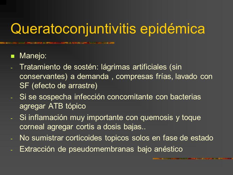 Queratoconjuntivitis epidémica