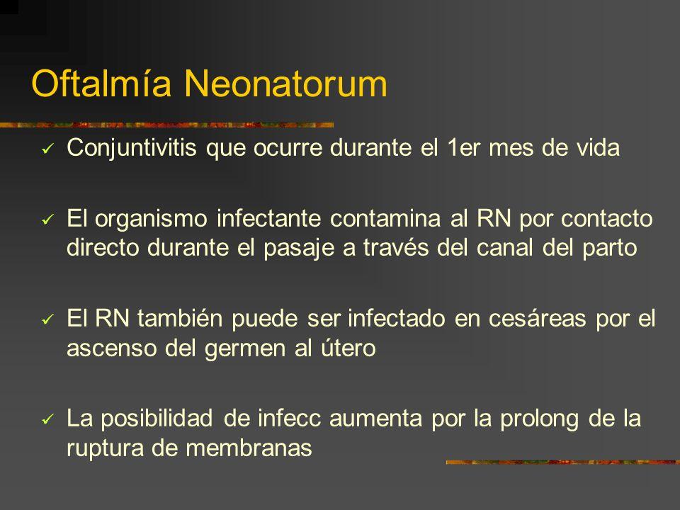 Oftalmía Neonatorum Conjuntivitis que ocurre durante el 1er mes de vida.
